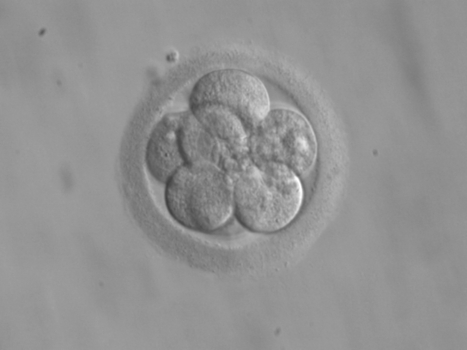 US Issues Patent For A Fraudulent Human Embryonic Stem Cell Method - Forbes | Patent Law | Scoop.it