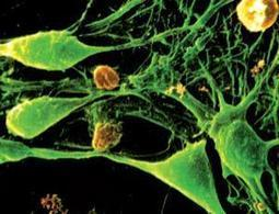 Quantum dots control brain cells for the first time - health - 14 February 2012 - New Scientist | GiftBasketVillas News - from my home to yours | Scoop.it