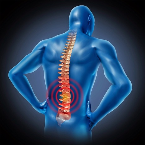 Is Laser Effective in Disc Decompression of Spinal Stenosis Patients? | Chiropractic | Scoop.it