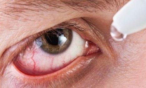 Vispring y Visine. Cuidado con las gotas para ojos rojos   CuidaTuVista.com   Tu Zona Lumbar   Scoop.it