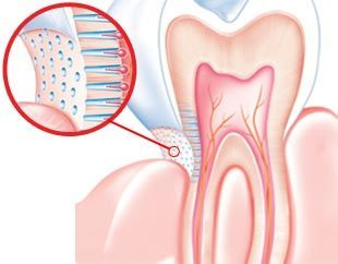 Treatment of Dentin Hypersensitivity: A Systematic Review of Randomized Clinical Trials | Journal of Dentistry and Oral Care Medicine | Open Access Journals | Annex Publishers | Annex News | Scoop.it