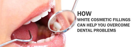 How White Cosmetic Fillings Can Help You Overcome Dental Problems | BangkokDental | Scoop.it