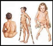 Revista Panamericana de Salud Pública: Lucha concertada contra la poliomielitis | La poliomielitis | Scoop.it