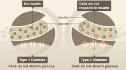 Diabetes Type 1 And Diabetes Type 2-Know More About Difference Between Diabetes Type 1 And Diabetes Type 2 | Diabetes | Scoop.it