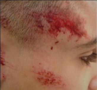 Onderzoek naar politiegeweld tegen 14-jarige jongen | brusselnieuws.be | macusa Malika | Scoop.it