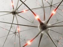 Estudian cómo afectan las placas de beta amiloide al cerebro con alzhéimer   Investigación,salud y seguridad   Scoop.it