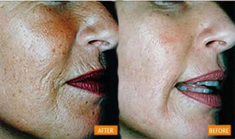 Ferulic serum best for anti wrinkle and anti aging. Best Price | bio  cosmetics  - serum for   face | Scoop.it