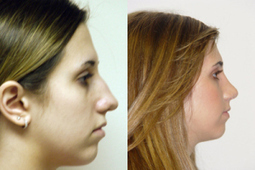 How to improve the looks of your nose | Rhinoplasty Surgery, Nose Plastic Surgeon in New York City | Scoop.it