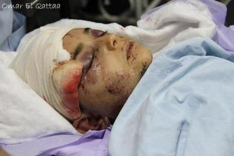 #GazaUnderAttack | NOV 21, 2012 | LIVE BLOG – PHOTOS | Gaza Under Attack | Scoop.it