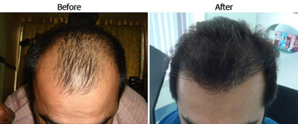 A Hair Transplant Treatment Recovery Process   Royal Cosmetic Surgery   Scoop.it
