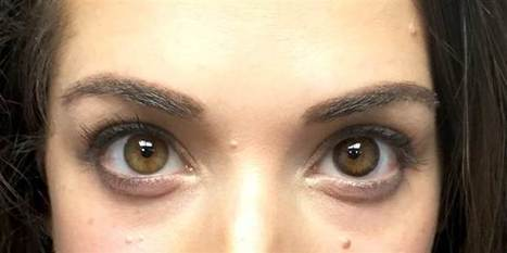 Can your eyeballs look old? Contact lenses claim anti-aging benefits | Kickin' Kickers | Scoop.it