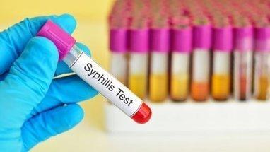 La progression de la syphilis se poursuit en France   biologie médicale   Scoop.it