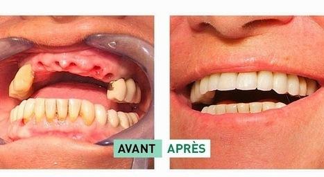 Tout savoir sur la pose d'implants dentaires | Chirurgie Plastique | Scoop.it