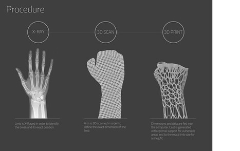 3D Printing Medical Solutions - Future Earth | 3Dprinting | Scoop.it