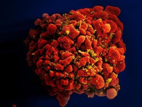 """Zombie"" HIV RNA might cause ongoing damage 