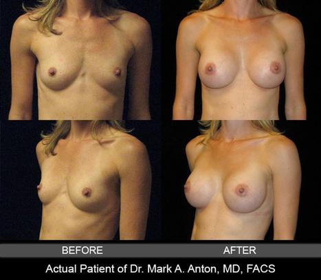 Plastic Surgery & Skin Care Blog   Anton Aesthetics   Plastic Surgery & Skin Care   Scoop.it