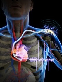 Self-powered cardiac pacemaker a breakthrough for researchers   Healthy Pharma Attitude   Scoop.it