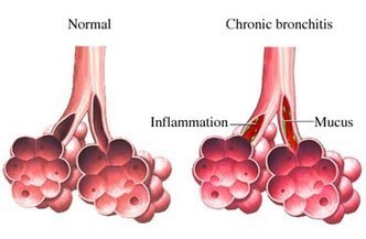 Bronchitis – Its causes and treatments | Insurance | Scoop.it