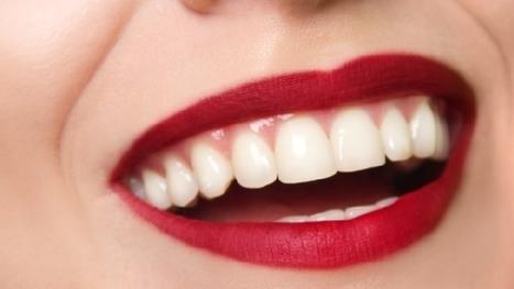 Mai più dolore, presto la carie si curerà senza trapano - Tgcom24 | Tuodentista - dentisti italiani nel web | Scoop.it