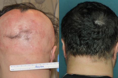Drug Restores Hair Growth in Patients with Alopecia Areata - Columbia University Medical Center | Plastic One World | Scoop.it