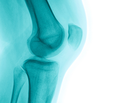 Can Mimicking Marine Biology Cure Osteoporosis? | Ocean Science | Scoop.it
