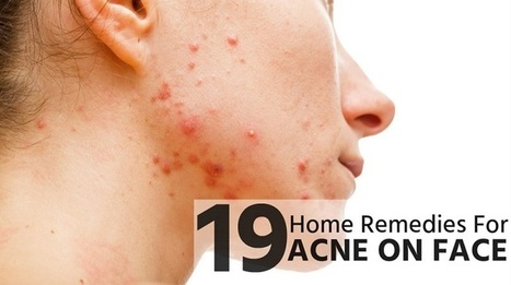19 Home Remedies for Acne on Face | Beauty Tips | Scoop.it