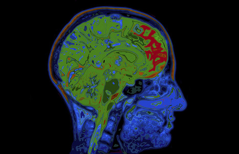 Cycling and Brain Injuries: The Dave Mirra Example   Bicycle Safety and Accident Claims in CA   Scoop.it