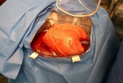 Set Of Donor Lungs Preserved For 11 Hours Outside The Body - RedOrbit | Organ Donation & Transplant Matters Resources | Scoop.it
