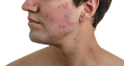 How To Overcome Acne for Men   record   Scoop.it