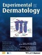 Controversial role of mast cells in skin cancers | immunology | Scoop.it
