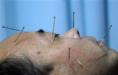 Acupuncture may help some people with COPD: study | Reuters | Acupuncture and the respiratory system | Scoop.it