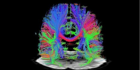 15 Emerging Neurotechnologies That Will Change The World   Social Neuroscience Advances   Scoop.it