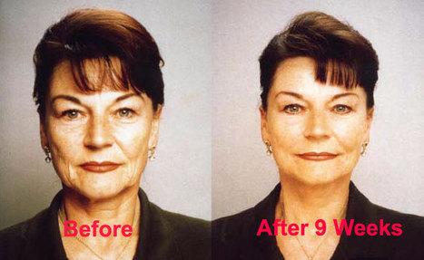 Cynthia Rowland Review | Facial Exercises | Scoop.it
