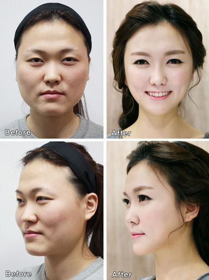 Korean Plastic Surgeries Have Gotten So Extreme Surgeons Are Issuing Special Certificates to Prove People Are Who They Say They Are | Strange days indeed... | Scoop.it