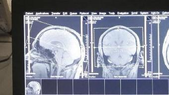 NFL players' brains at work show early signs of concussions' toll - Los Angeles Times   Concussions   Scoop.it