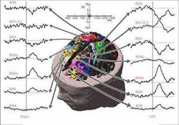 Electromagnetic Stimulation of Pineal Gland Crystals | Health Supreme | Scoop.it