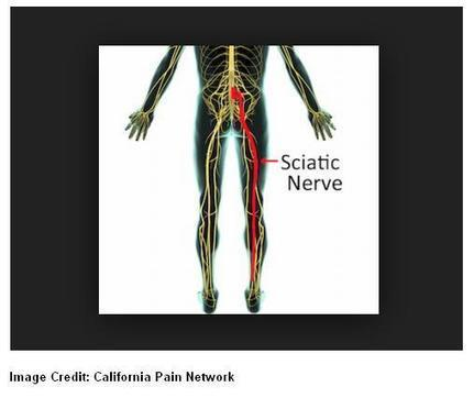 Sciatic Nerve Pain Can Make Everyday Life Difficult | pain management clinic | Scoop.it