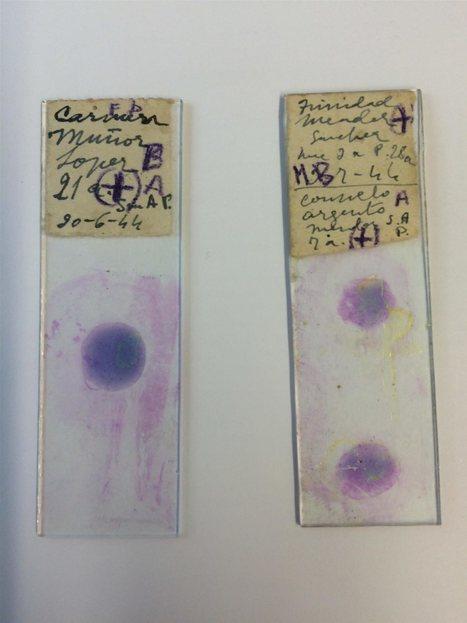 Unas muestras de sangre revelan cómo era la malaria en la primera mitad del siglo XX | Recull de premsa del Servei de Control de Mosquits | Scoop.it
