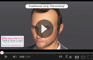 Hair Transplant Clinic in Delhi | Berkowits Hair & Skin Clinic | Scoop.it