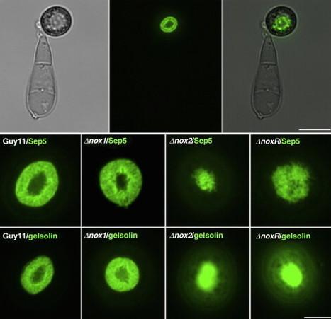 Current Opinion in Plant Biology: Regulation of appressorium development in pathogenic fungi (2015)   Plants and Microbes   Scoop.it