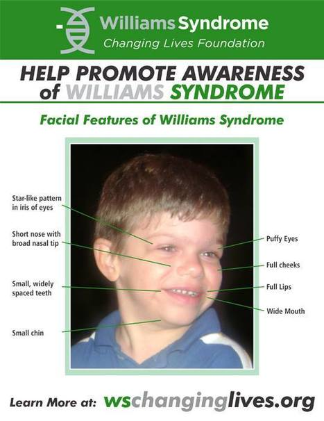 williams syndrome facial
