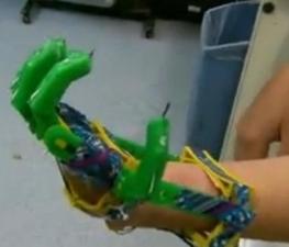 Un padre construye la prótesis de una mano biónica para su hijo con una impresora 3D - ANTENA 3 TV   Antonio Galvez   Scoop.it