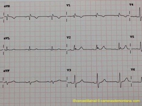 Carreras de Montaña y salud: Electrocardiograma previo para carreras ¿Seguridad o descargo de responsabilidad? Por @cercedillatrail | trailrunning | Scoop.it