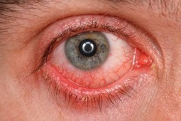 Pinkeye, Conjunctivitis and Homeopathy | Allergies, immunity and infections | Scoop.it