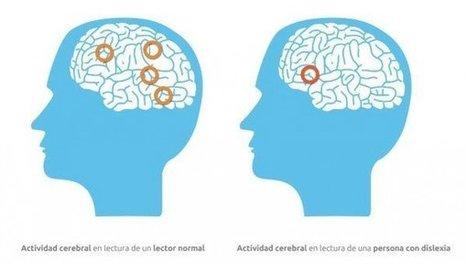 La dislexia, problema de neurodesarrollo desconocido. Efesalud.com | Desarrollo psicológico y sus trastornos | Scoop.it