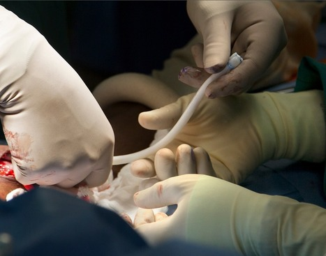 Surgeons at Duke University Hospital Implant Bioengineered Vein   Medical Engineering = MEDINEERING   Scoop.it