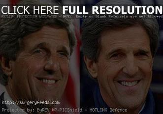 John Kerry Plastic Surgery Before and After Pictures 2013-2014 | Plastic Surgery Before and After Photos | Scoop.it