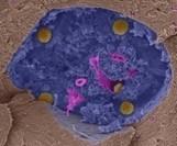 Dalle staminali una terapia genica contro i tumori - Le Scienze | Scientific life | Scoop.it