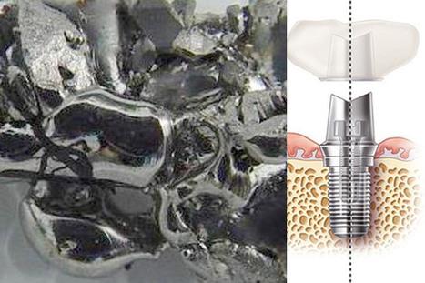 Utilizzo del titanio negli impianti dentali | Studio Degidi Bologna | Blog Implantologia Dentale Degidi | Scoop.it