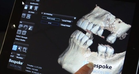 3D Systems Launches Bespoke Modeling Cloud Service | 3D Printer Plans | Technologia w medycynie | Scoop.it